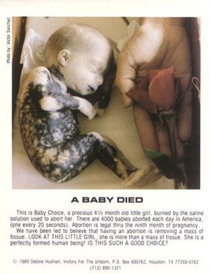 abortedbaby101